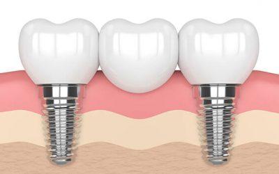 Wissenswertes über einen Implantatgetragenen Zahnersatz in Ungarn