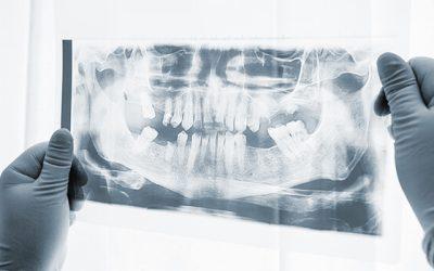 Wissenwertes über einen Knochenaufbau in Ungarn